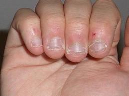 Conctructii Unghii Cu Gel Flory Nails Pagină 2